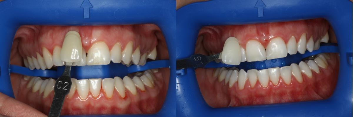 Dantų balinimo procedūra. Kauno implantologijos klinika.