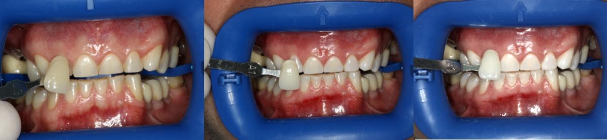 Dantų balinimas. Kauno implantologijos centras