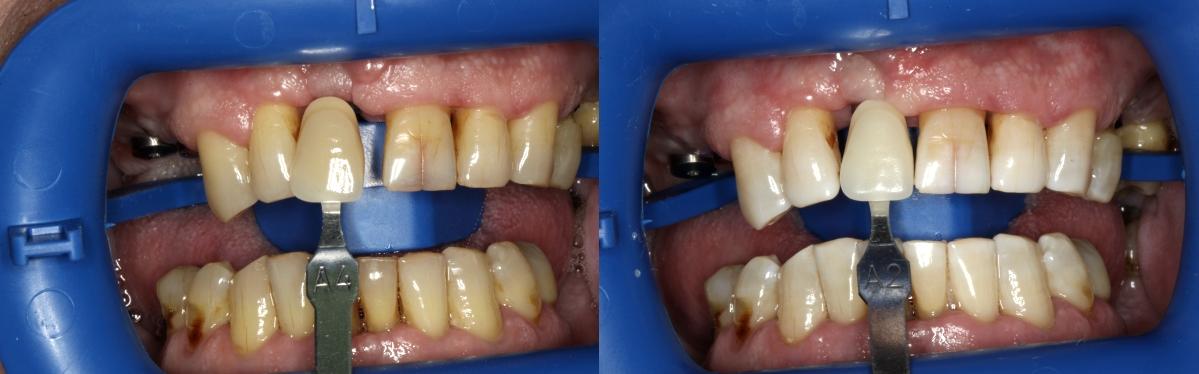Dantų balinimas. Kauno implantologijos centras.