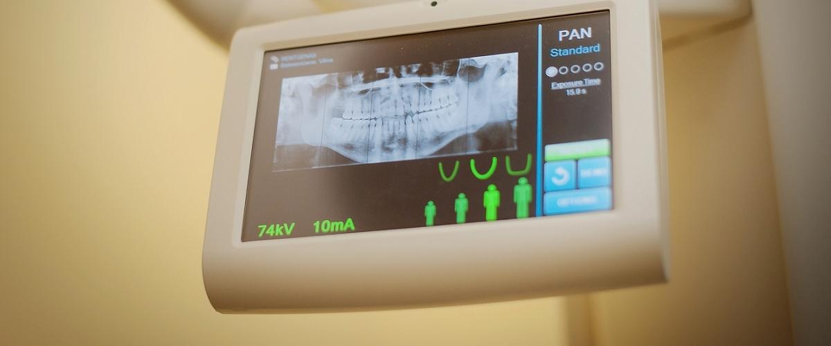 Dantų gydymas nėštumo metu
