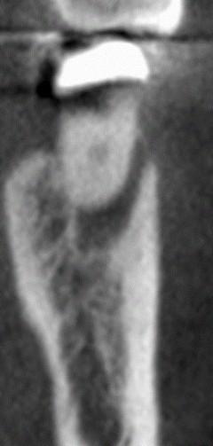 Koronarinis pjūvis. 36 dantis Distalinė šaknis