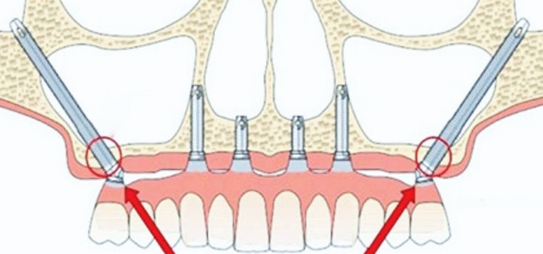Zygomatic implants