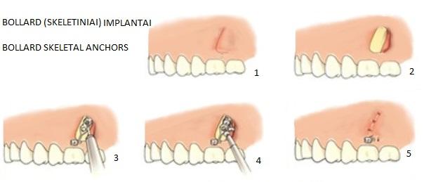 Skeletiniai implantai (Bollard implantai). Efektyvus ortodontinis gydymas.
